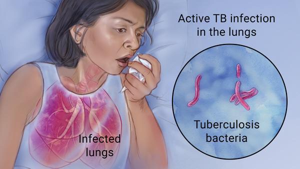 जानिये कुछ रोचक जानकारी टीबी (tuberculosis ) के बारे  में