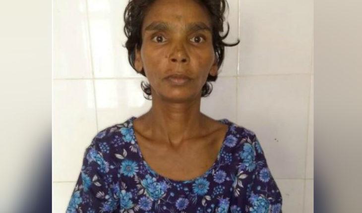 डॉक्टरों ने महिला के पेट से निकाला 1.5 किलो का सामान, पेट में मिला मंगलसूत्र और चूड़ियां !